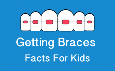 (Infographic) Getting Braces: Facts For Kids